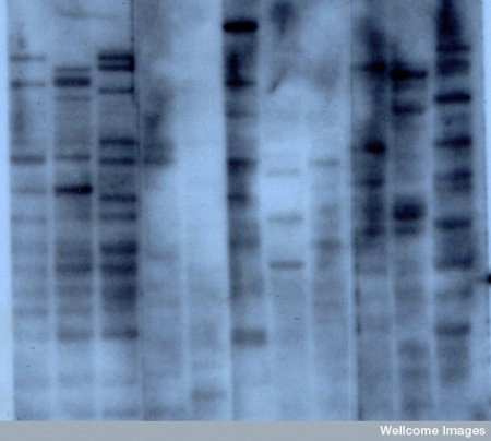 First DNA Fingerprint